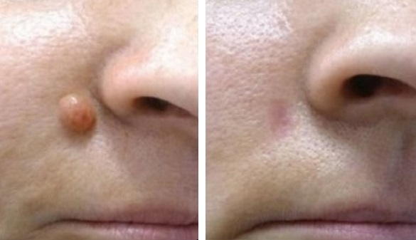 Before and After Mole Removal Results